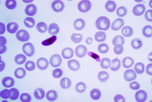 Plasmodium_falciparum_wiki_CDC_Dr. Mae Melvin Transwiki